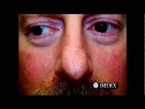 La chirurgie vasculeuse lopération de la carotide