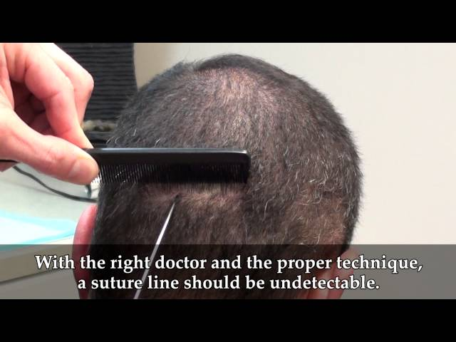 Dr. Brett Bolton Hair transplants videos