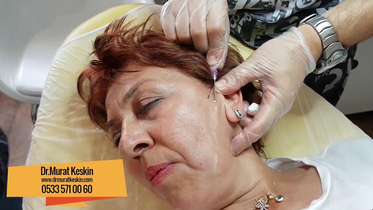 Moulding COG yöntemiyle Ameliyatsız Yüz Germe İşlemi