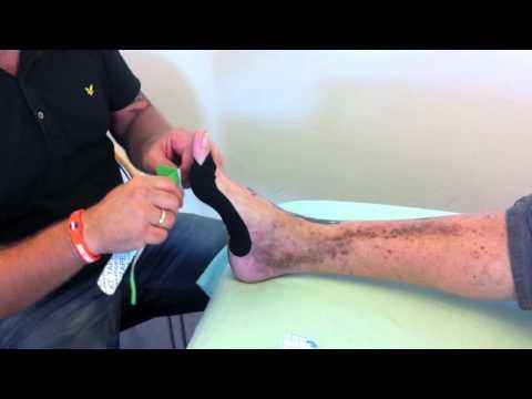 Koślawego operacja deformacja w Rostowie