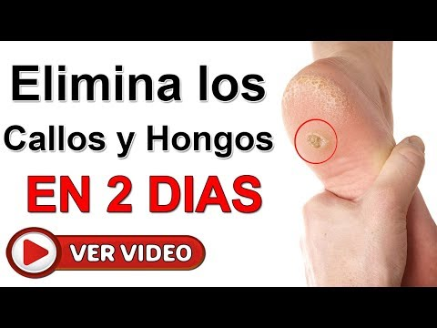 Como sanar el hongo de las uñas y los pies por completo