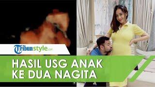 Unggah Hasil USG, Nagita Slavina Ungkap Kemiripan Calon Anak Keduanya dengan Raffi Ahmad