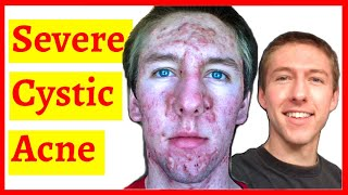 Severe Cystic Acne - Timelapse (10 Months)