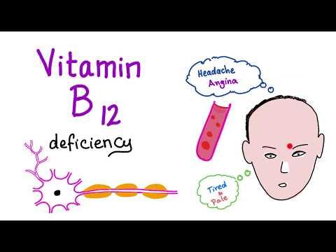 Vitamin B12 (Cobalamin) Deficiency (Causes, Symptoms, Diagnosis & Management)