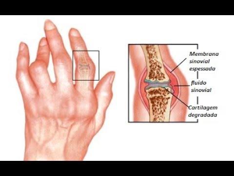 O que o unguento bem ajuda no eczema a mãos