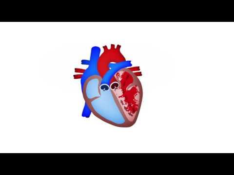 Pacientes hipertensos en tiempo caluroso