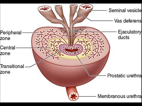 Fibrosis kezelés prosztatitis