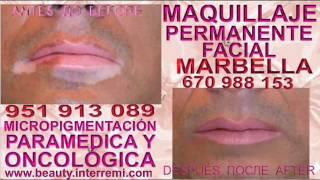 Tratamiento Para El Vitiligo CAMUFLAJE VITILIGO , Vitiligo Tratamiento,