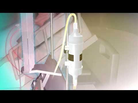În tratarea articulațiilor cu ape minerale