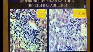 Паразиты в теле человека: описторхоз