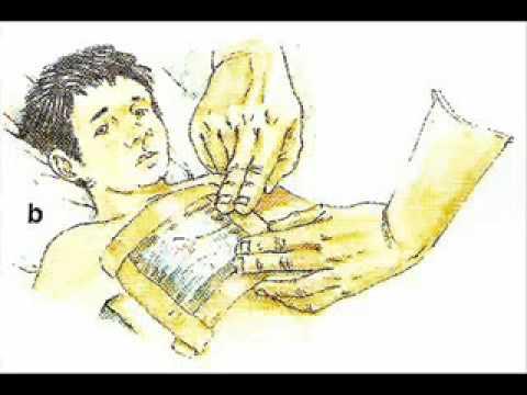 Prevenzione dibazol ARI