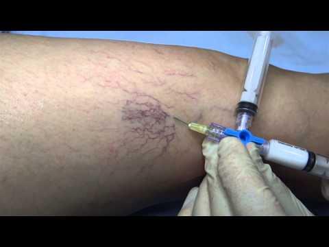 คลินิกสำหรับการรักษาผ่าตัดเส้นเลือดขอด