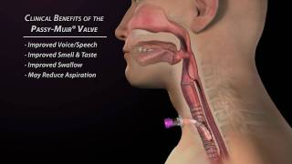 Clinical Benefits of the Passy-Muir Valve