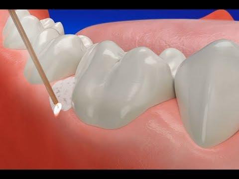 How Gum Disease Treatment Laser works