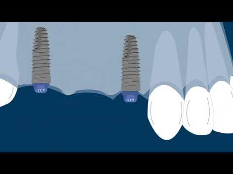 Thin Biotype marginal bone loss