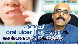 Oral ulcer and their solution - Video