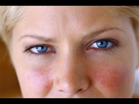 El tratamiento atopicheskogo de la dermatitis por la hipnosis