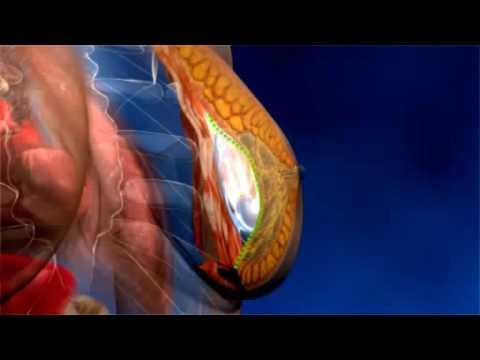 Los mejores cirujanos plásticos por el aumento del pecho