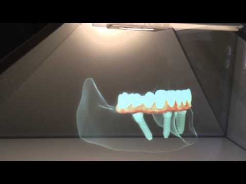 Implantes dentários no Porto - prótese total fixa com protocolo all-on-4