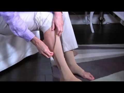 Varicoză durere în caviarul picioarelor