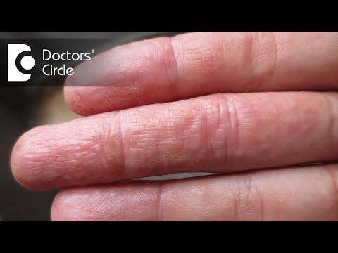 Atopic e dermatite allergica questo stesso
