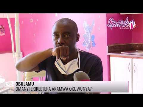 Obulamu: Omusawo anyonyola okuwunya akamwa kwekiva