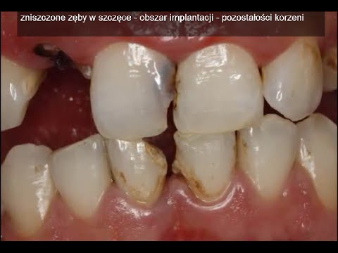Abdominoplastika y el aumento del pecho las revocaciones