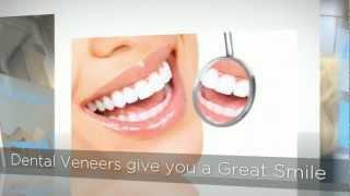 preview picture of video 'Porcelain Veneers Marlow Bucks SL7 01628 474044'
