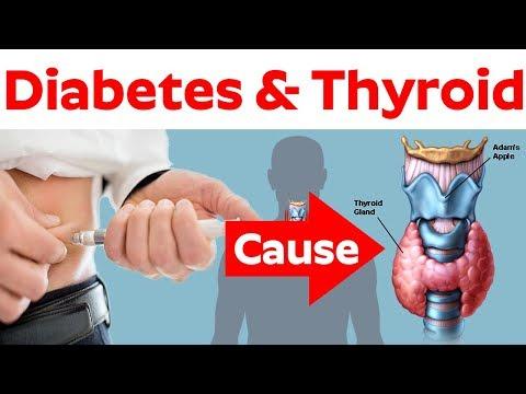 Vorhofflimmern mit Typ-2-Diabetes