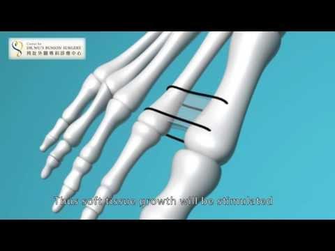 ศัลยกรรมกระดูกรองเท้าสำหรับผู้หญิงที่มี valgus hallux ซื้อในมอสโก