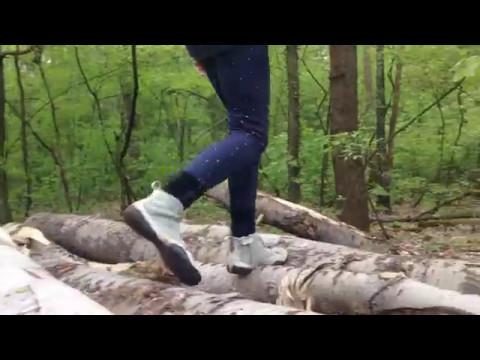 Die Valgusdeformation des Kniegelenkes bei den Erwachsenen