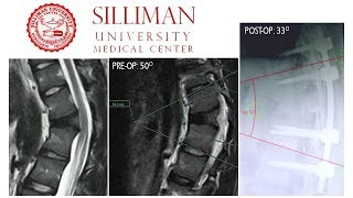 T11-T12 Laminectomy + T10-L2 Instrumented Fusion for T12 Collapse (#budgetmealortho)