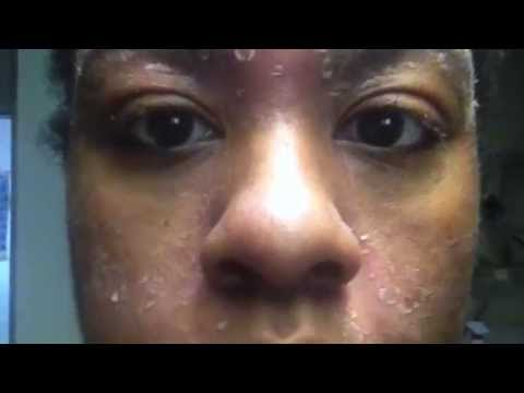Proactiv ruined my skin!