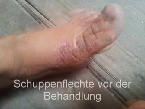 Die Schuppenflechte der Erscheinungsform auf der Haut