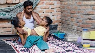 Conjoined Sisters Find Love With The Same Man