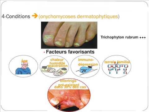 Le traitement du microorganisme végétal négligé des ongles et le pied