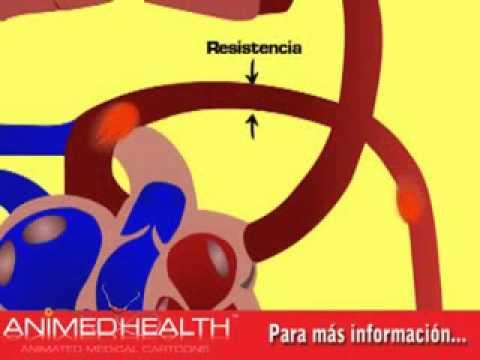Examen en la hipertensión arterial