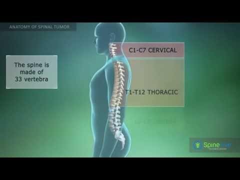 Die behandelt Chondrose Halswirbelsäule