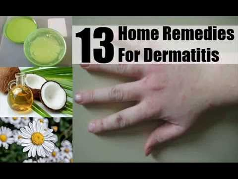 Video 13 Home Remedies For Dermatitis