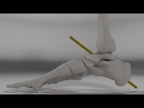 Kniebeugen Knieschmerzen