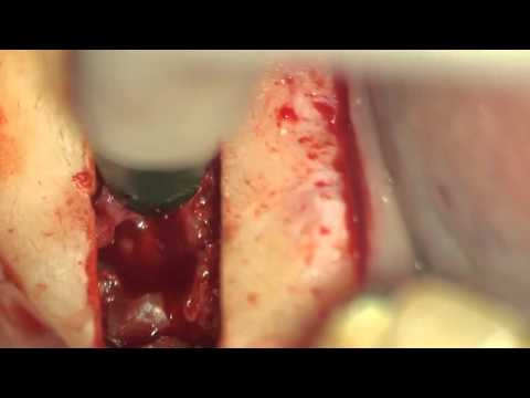 Удаление ретенированного 4.5 под микроскопом с одномоментной имплантацией