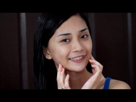 Mula sa kung saan ang mga necks ng pigment spots