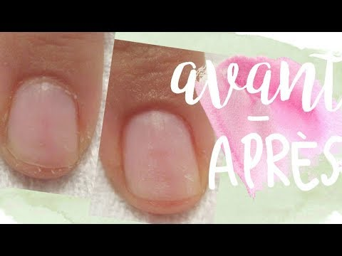Comme guérir vite les ongles de sloeniya