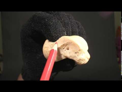 L tiroxina e articolazioni