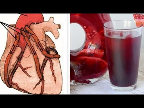 Lekarstwem na łagodnym nadciśnieniem tętniczym