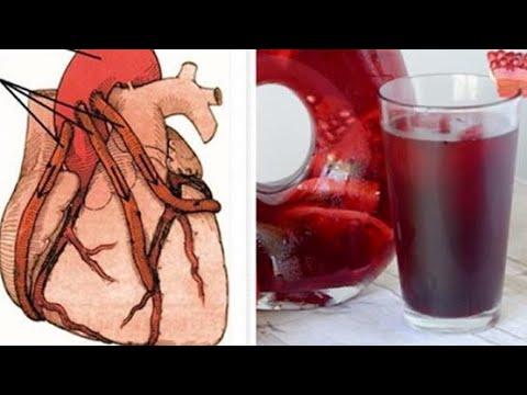Nadciśnieniowa choroba serca