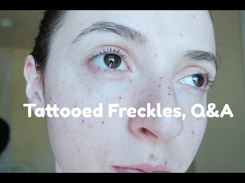 Creams pigmentation mga review para sa mga buntis