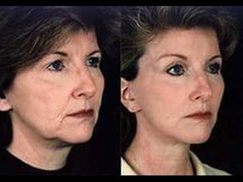 Крем от пигментными пятнами на лице