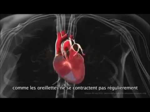 Lhypertension artérielle symptomatique 1 degré