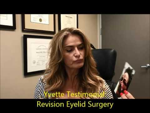 Testimonial for Revision Droopy Eyelid (Ptosis) Surgery